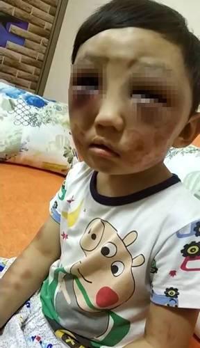 4岁男童常遭妈妈毒打逃出家求救 母亲:生他差点难产死